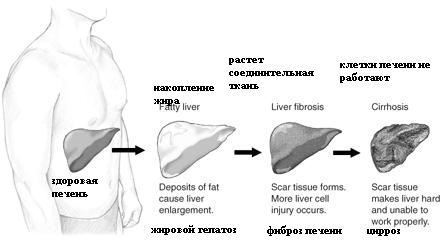 Жировой гепатоз без лечения превращается в цирроз
