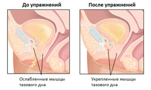 Порно мышцы влагалища